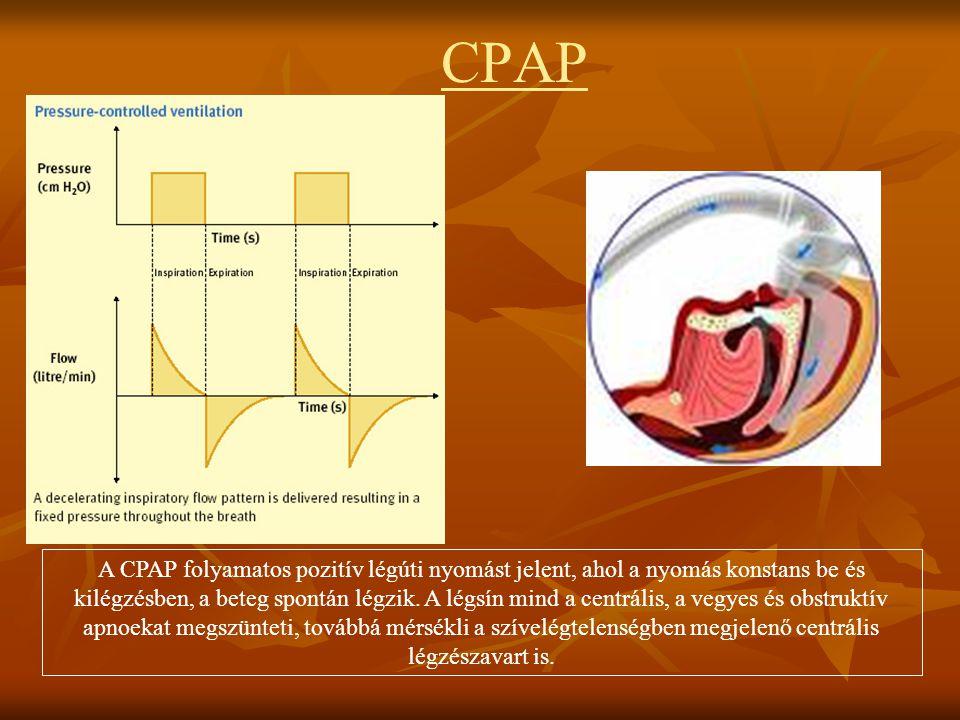 CPAP A CPAP folyamatos pozitív légúti nyomást jelent, ahol a nyomás konstans be és kilégzésben, a beteg spontán légzik. A légsín mind a centrális, a v