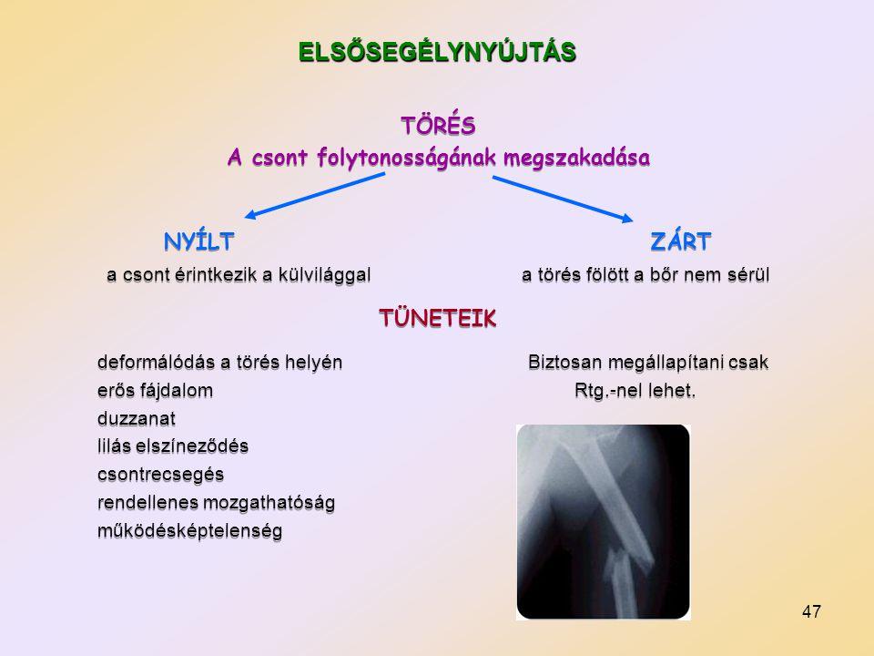 47 TÖRÉS A csont folytonosságának megszakadása NYÍLT ZÁRT a csont érintkezik a külvilággal a törés fölött a bőr nem sérül TÜNETEIK deformálódás a törés helyén Biztosan megállapítani csak erős fájdalom Rtg.-nel lehet.