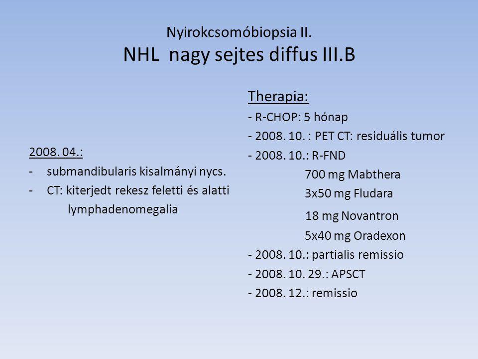 Nyirokcsomóbiopsia II. NHL nagy sejtes diffus III.B 2008. 04.: -submandibularis kisalmányi nycs. -CT: kiterjedt rekesz feletti és alatti lymphadenomeg