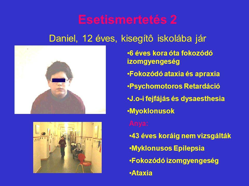 Esetismertetés 2 Daniel, 12 éves, kisegítô iskolába jár 6 éves kora óta fokozódó izomgyengeség Fokozódó ataxia és apraxia Psychomotoros Retardáció J.o-i fejfájás és dysaesthesia Myoklonusok Anya: 43 éves koráig nem vizsgálták Myklonusos Epilepsia Fokozódó izomgyengeség Ataxia