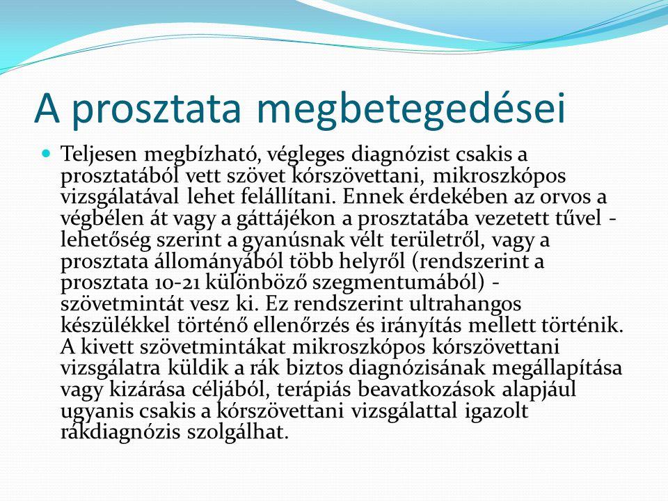 A prosztata megbetegedései Teljesen megbízható, végleges diagnózist csakis a prosztatából vett szövet kórszövettani, mikroszkópos vizsgálatával lehet