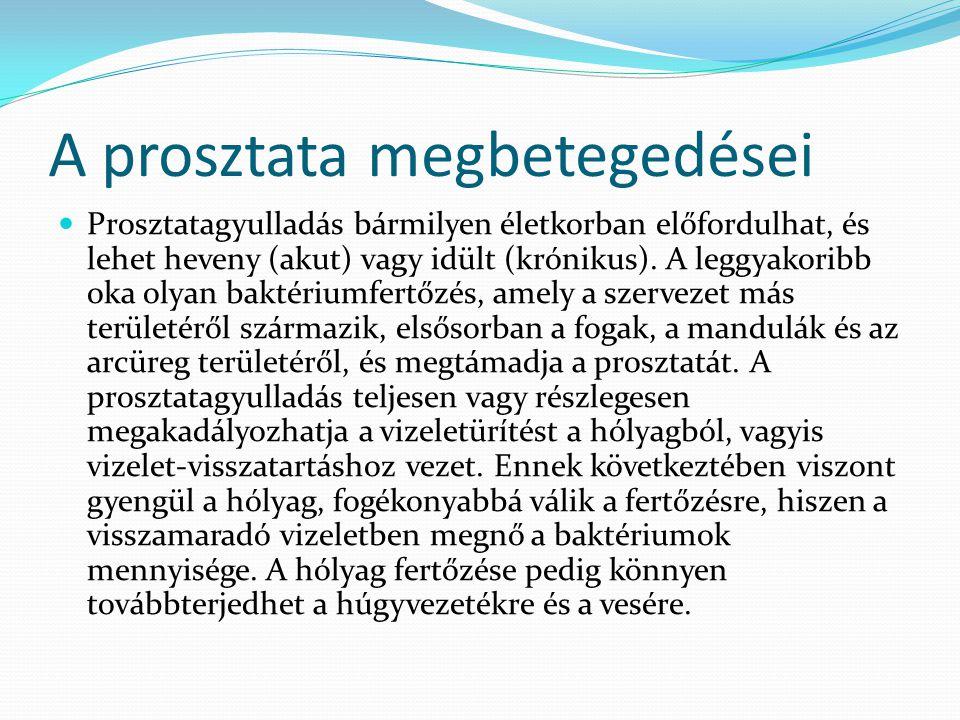 A prosztata megbetegedései Prosztatagyulladás bármilyen életkorban előfordulhat, és lehet heveny (akut) vagy idült (krónikus). A leggyakoribb oka olya