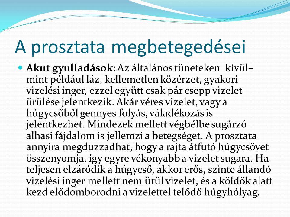 A prosztata megbetegedései Akut gyulladások: Az általános tüneteken kívül– mint például láz, kellemetlen közérzet, gyakori vizelési inger, ezzel együt