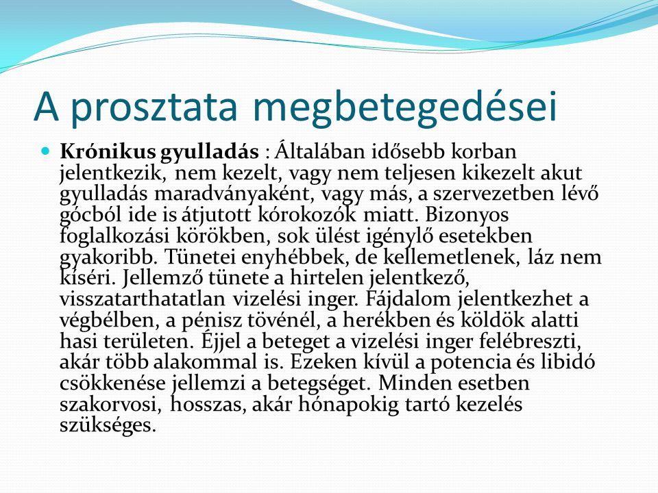 A prosztata megbetegedései Krónikus gyulladás : Általában idősebb korban jelentkezik, nem kezelt, vagy nem teljesen kikezelt akut gyulladás maradványa