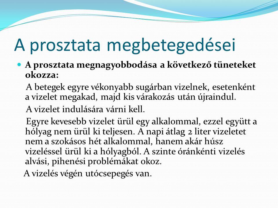 A prosztata megbetegedései A prosztata megnagyobbodása a következő tüneteket okozza: A betegek egyre vékonyabb sugárban vizelnek, esetenként a vizelet