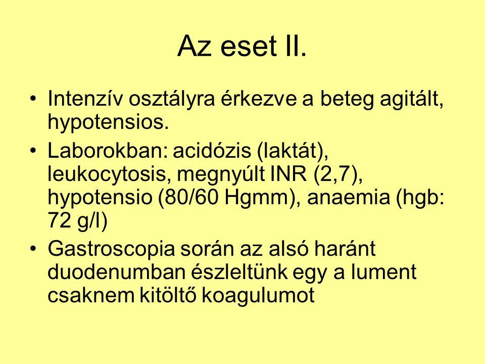 Az eset II. Intenzív osztályra érkezve a beteg agitált, hypotensios. Laborokban: acidózis (laktát), leukocytosis, megnyúlt INR (2,7), hypotensio (80/6