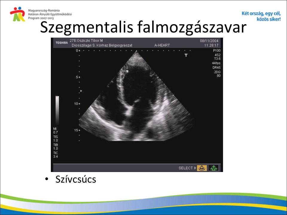 Javaslat Coronarographiával igazolt stenosisok esetén fontos a viabilitás vizsgálata (DOBET), ill.