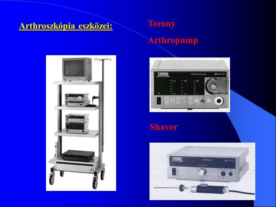 Arthroszkópia eszközei: ToronyArthropump Shaver