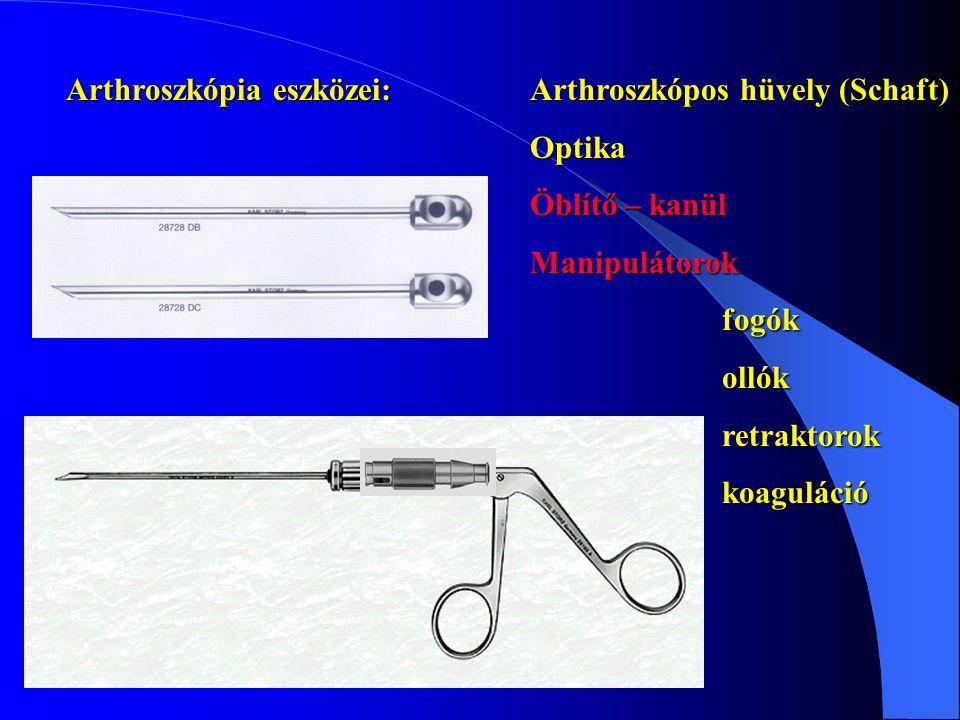 Arthroszkópia eszközei: Arthroszkópos hüvely (Schaft) Optika Öblítő – kanül Manipulátorokfogókollókretraktorokkoaguláció