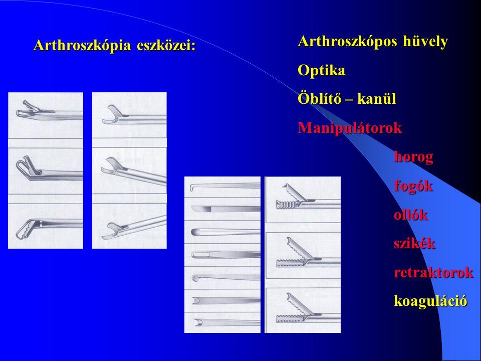 Arthroszkópia eszközei: Arthroszkópos hüvely Optika Öblítő – kanül Manipulátorokhorogfogókollókszikékretraktorokkoaguláció
