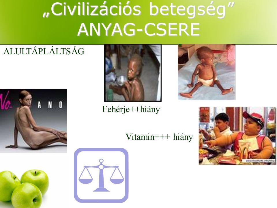 """""""Civilizációs betegség"""" ANYAG-CSERE ALULTÁPLÁLTSÁG Fehérje++hiány Vitamin+++ hiány"""