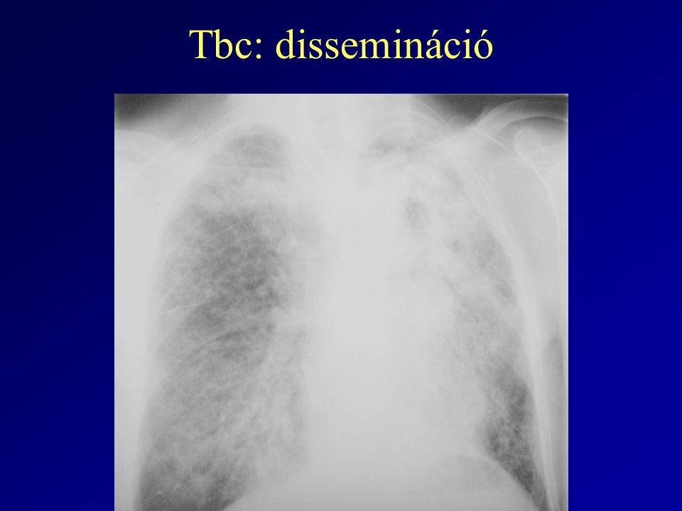 Tbc: dissemináció
