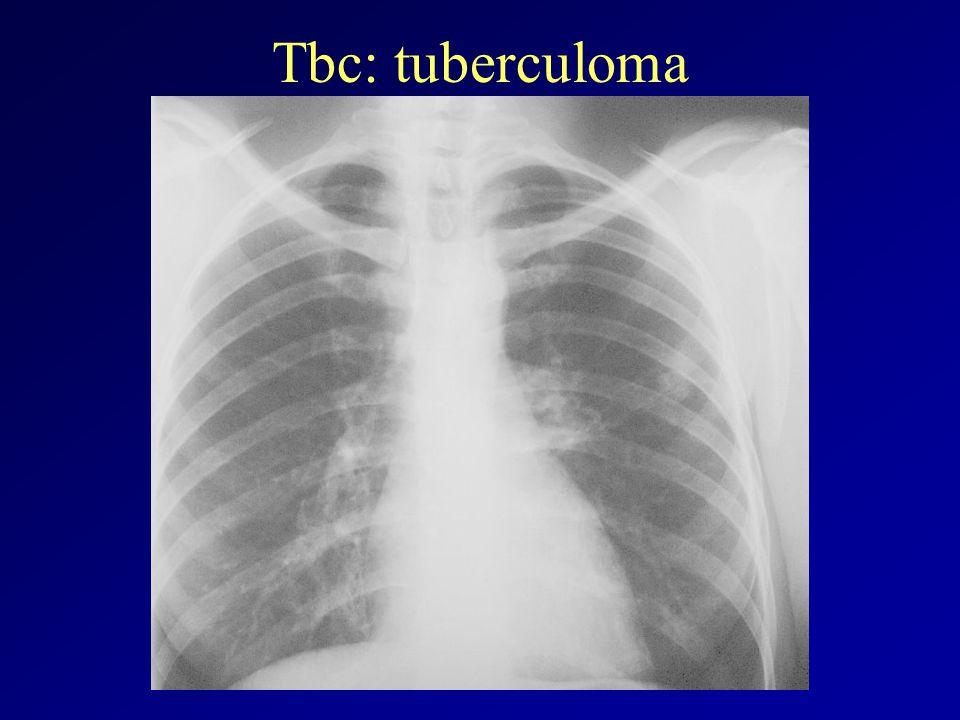 Tbc: tuberculoma