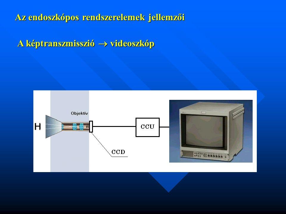 Az endoszkópos rendszerelemek jellemzői A képtranszmisszió  videoszkóp