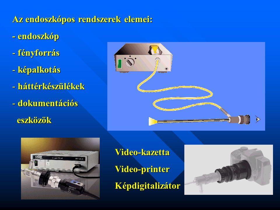 Az endoszkópos rendszerelemek illesztése: Endoszkóp  fénykábel  fényforrás látómező megvilágítás egyenletessége fényvezető száloptika apertura fényvezető konfiguráció látómező megvilágítás egyenletessége fényvezető száloptika apertura fényvezető konfiguráció fényhasznosítás fénykeresztmetszetek csatolása Endoszkóp  fényforrás  endokamera automatikus érzékenység vezérlés spektrális illesztés PDD technikák