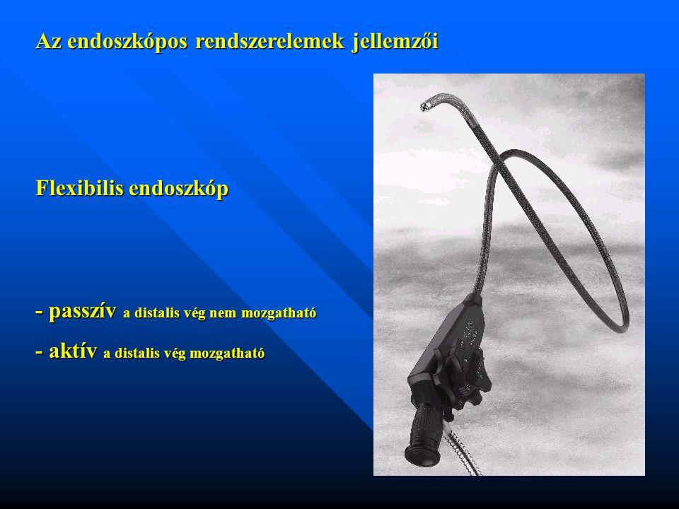 Az endoszkópos rendszerelemek jellemzői Flexibilis endoszkóp - passzív a distalis vég nem mozgatható - aktív a distalis vég mozgatható
