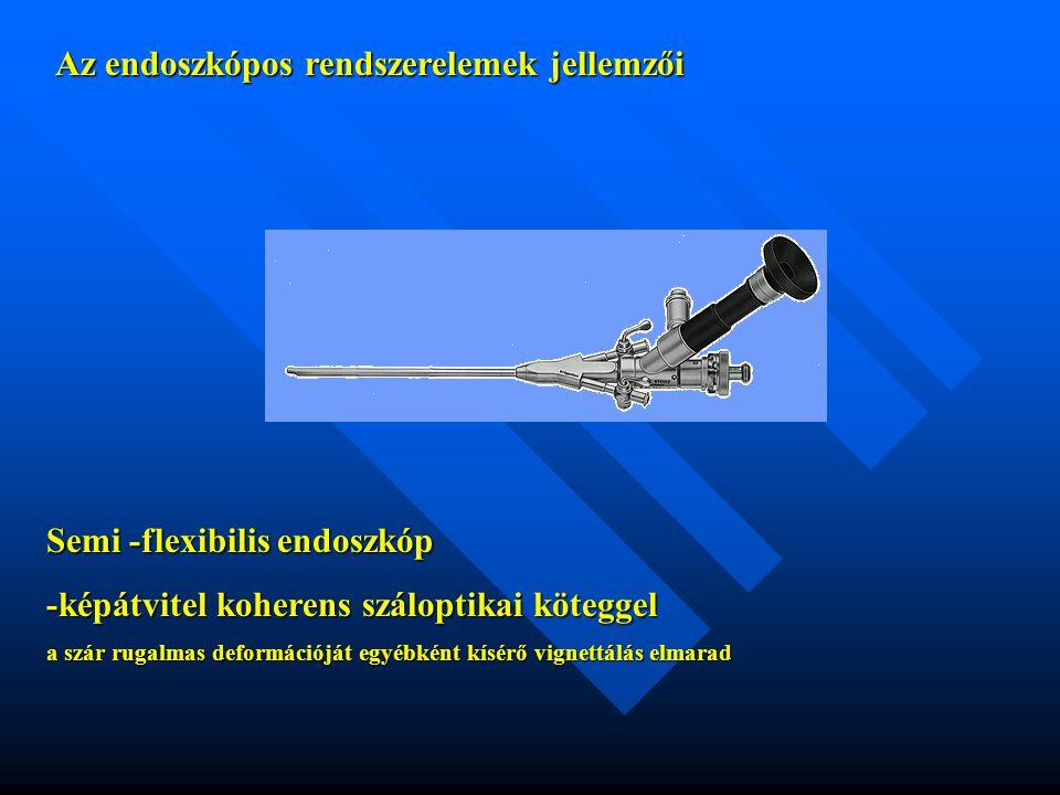 Az endoszkópos rendszerelemek felosztása Elvi működés szerint: teleszkóp video-endoszkóp