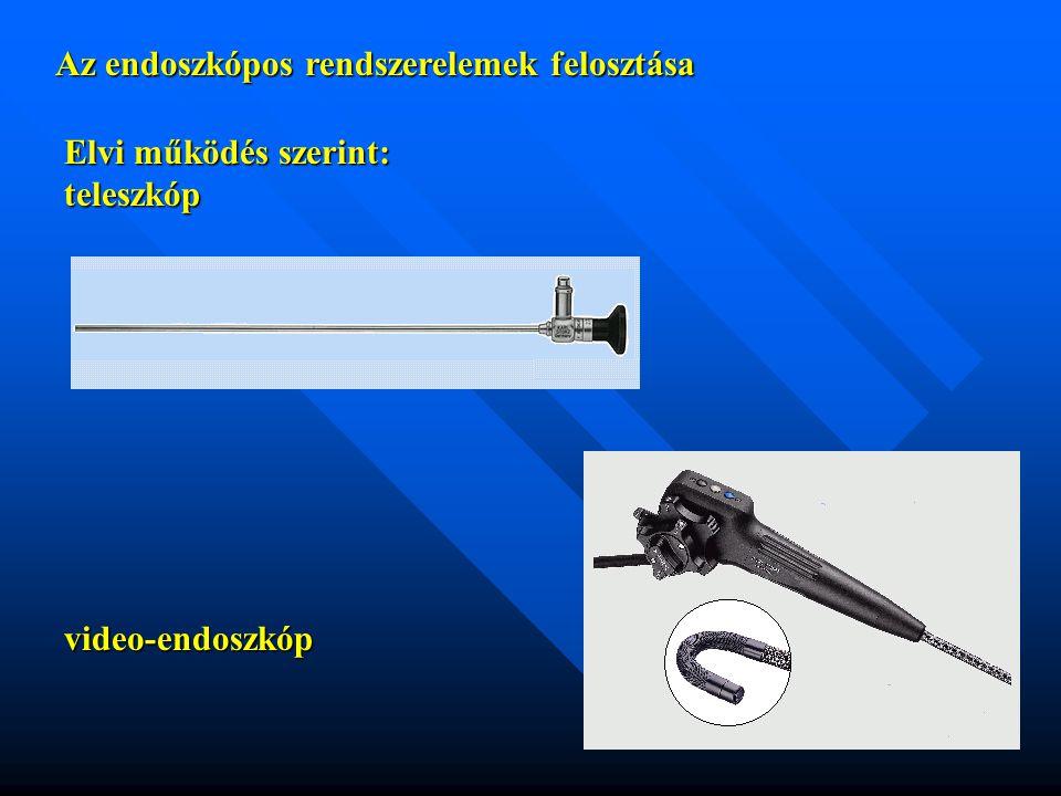 Az endoszkópos rendszerelemek jellemzői fényforrások elvi felépítése: fényforrások:halogén - fényforrások:halogén halid, xenon kondenzorrendszer: reflexiós (integrált) - kondenzorrendszer: reflexiós (integrált)refrakciós - hőszűrő