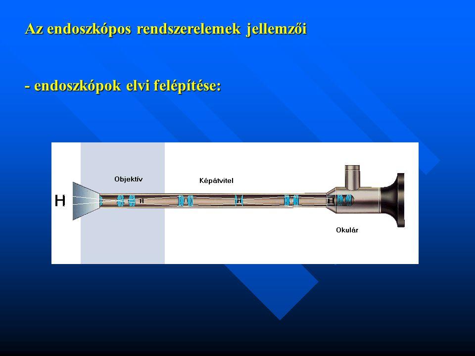 Az endoszkópos rendszerelemek jellemzői - endoszkópok elvi felépítése: