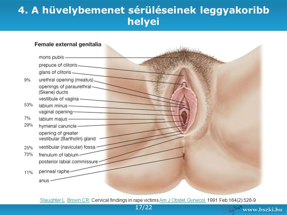 4. A hüvelybemenet sérüléseinek leggyakoribb helyei 70% 53% 29% 25% 11% 9% 7% Slaughter LSlaughter L, Brown CR: Cervical findings in rape victims Am J