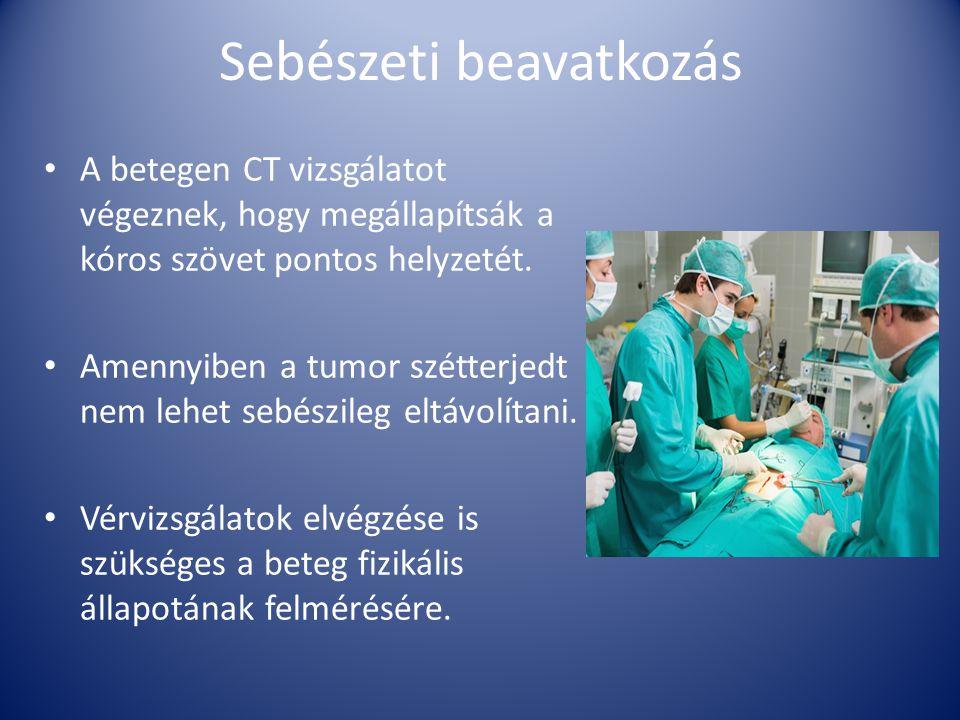 Sebészeti beavatkozás A betegen CT vizsgálatot végeznek, hogy megállapítsák a kóros szövet pontos helyzetét. Amennyiben a tumor szétterjedt nem lehet