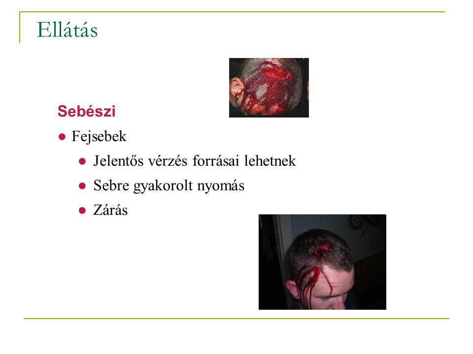 Ellátás Sebészi ●Fejsebek ●Jelentős vérzés forrásai lehetnek ●Sebre gyakorolt nyomás ●Zárás