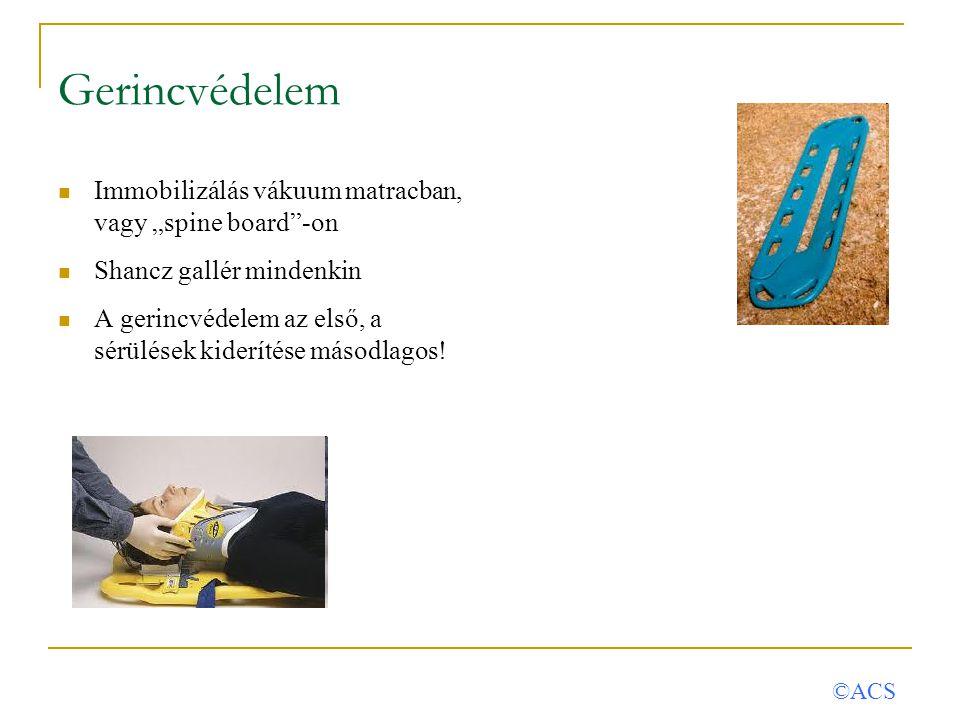 """Gerincvédelem Immobilizálás vákuum matracban, vagy """"spine board""""-on Shancz gallér mindenkin A gerincvédelem az első, a sérülések kiderítése másodlagos"""