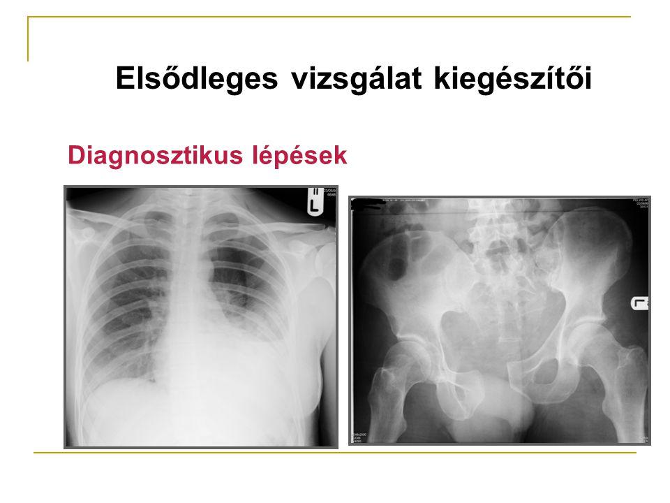 Elsődleges vizsgálat kiegészítői Diagnosztikus lépések