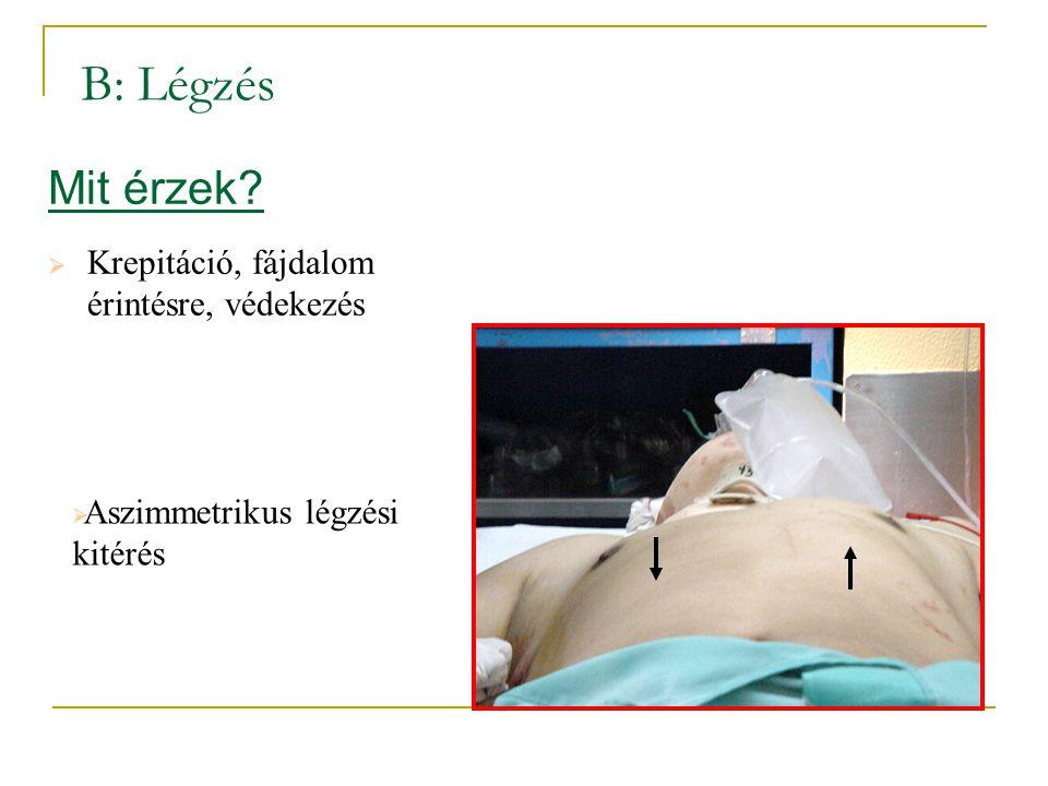 Mit érzek?  Krepitáció, fájdalom érintésre, védekezés  Aszimmetrikus légzési kitérés B: Légzés