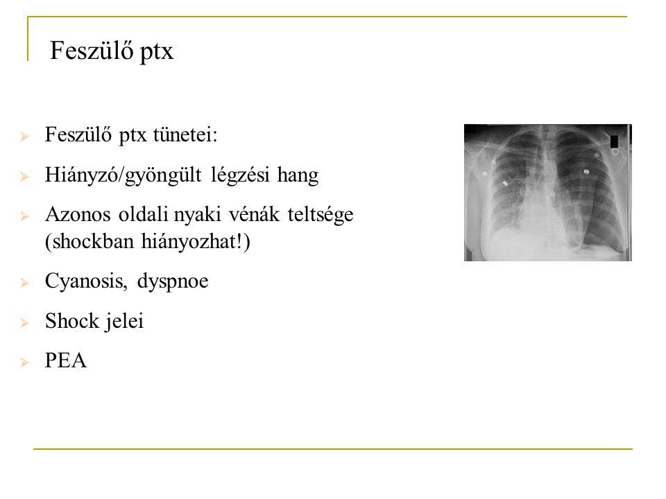 Feszülő ptx  Feszülő ptx tünetei:  Hiányzó/gyöngült légzési hang  Azonos oldali nyaki vénák teltsége (shockban hiányozhat!)  Cyanosis, dyspnoe  S