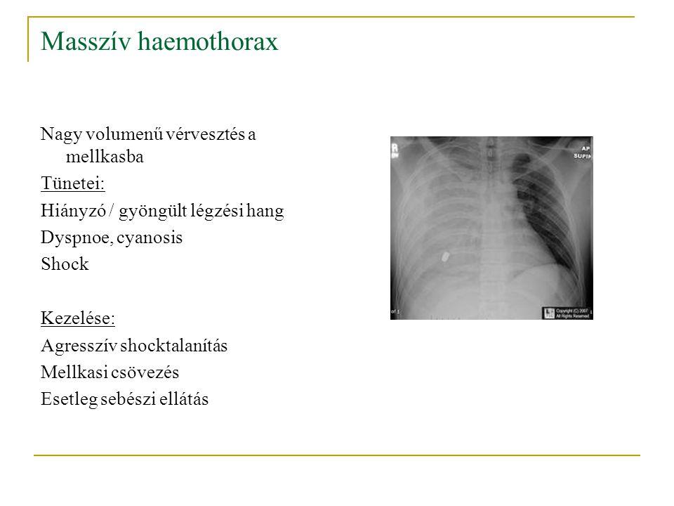 Masszív haemothorax Nagy volumenű vérvesztés a mellkasba Tünetei: Hiányzó / gyöngült légzési hang Dyspnoe, cyanosis Shock Kezelése: Agresszív shocktal
