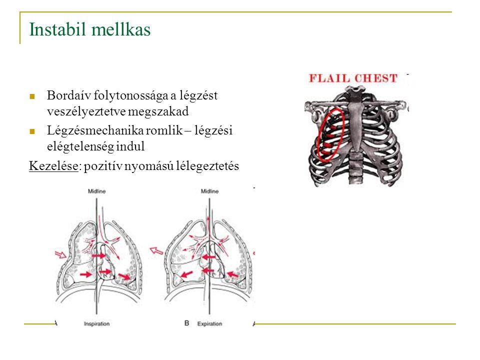 Instabil mellkas Bordaív folytonossága a légzést veszélyeztetve megszakad Légzésmechanika romlik – légzési elégtelenség indul Kezelése: pozitív nyomás