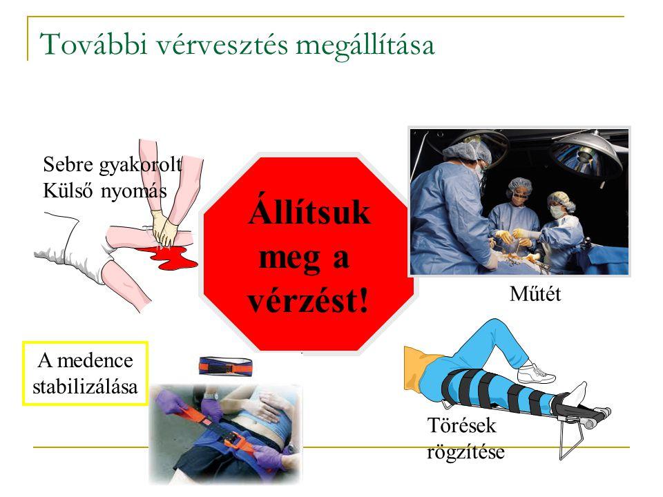 További vérvesztés megállítása Sebre gyakorolt Külső nyomás Törések rögzítése A medence stabilizálása Állítsuk meg a vérzést! Műtét