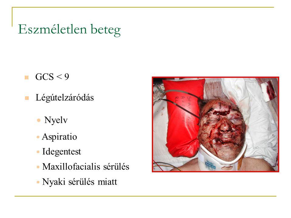 Eszméletlen beteg GCS < 9 Légútelzáródás  Nyelv  Aspiratio  Idegentest  Maxillofacialis sérülés  Nyaki sérülés miatt