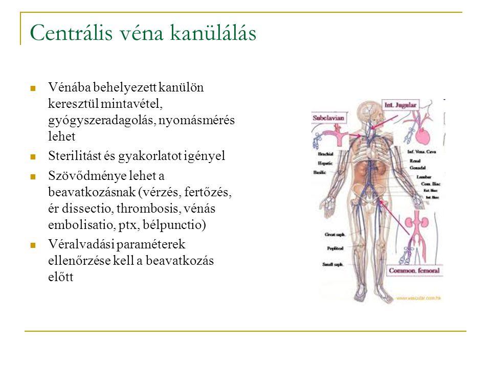 Centrális véna kanülálás Vénába behelyezett kanülön keresztül mintavétel, gyógyszeradagolás, nyomásmérés lehet Sterilitást és gyakorlatot igényel Szöv