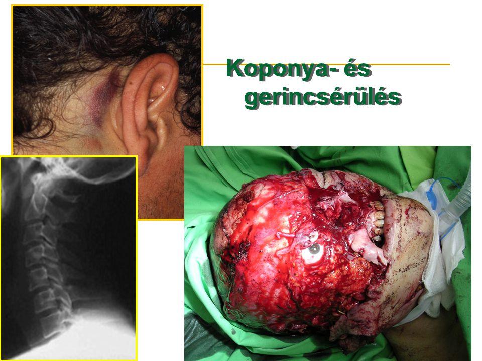 Koponya- és gerincsérülés D Koponya- és gerincsérülés D