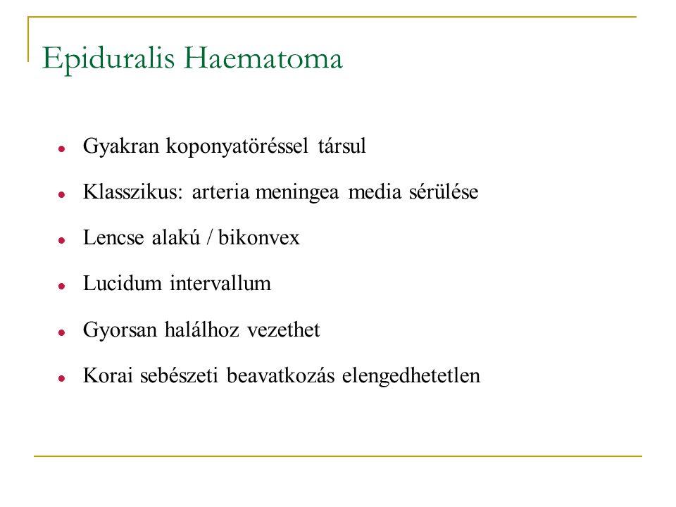Epiduralis Haematoma ● Gyakran koponyatöréssel társul ● Klasszikus: arteria meningea media sérülése ● Lencse alakú / bikonvex ● Lucidum intervallum ●