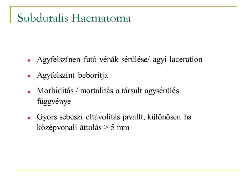 Subduralis Haematoma ● Agyfelszínen futó vénák sérülése/ agyi laceration ● Agyfelszínt beborítja ● Morbiditás / mortalitás a társult agysérülés függvé