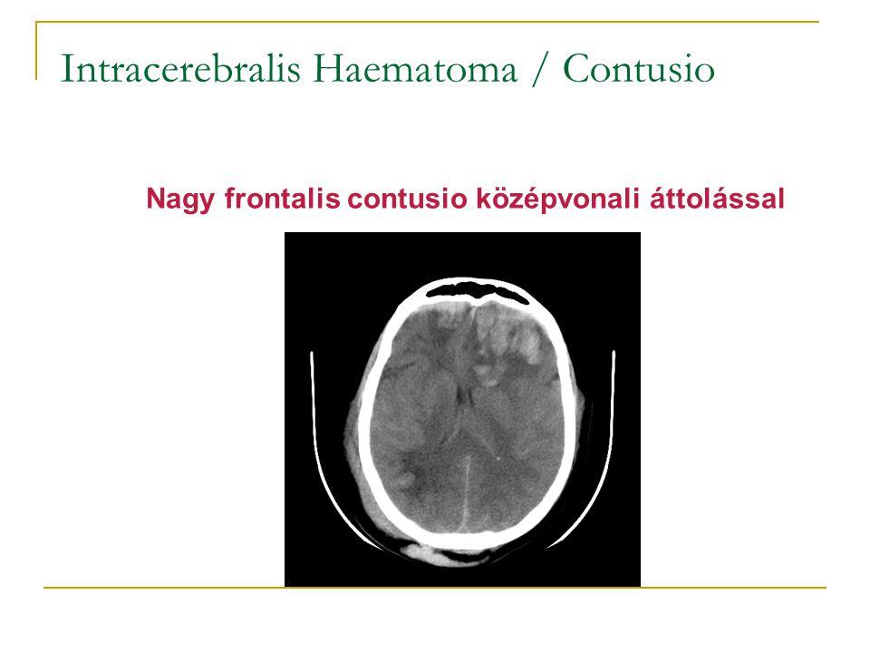Intracerebralis Haematoma / Contusio Nagy frontalis contusio középvonali áttolással