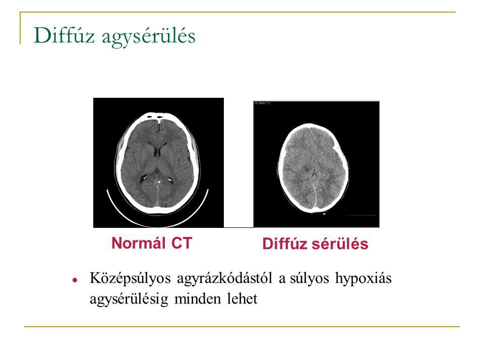 Diffúz agysérülés Normál CT Diffúz sérülés ● Középsúlyos agyrázkódástól a súlyos hypoxiás agysérülésig minden lehet