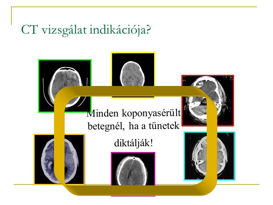 CT vizsgálat indikációja? Minden koponyasérült betegnél, ha a tünetek diktálják!
