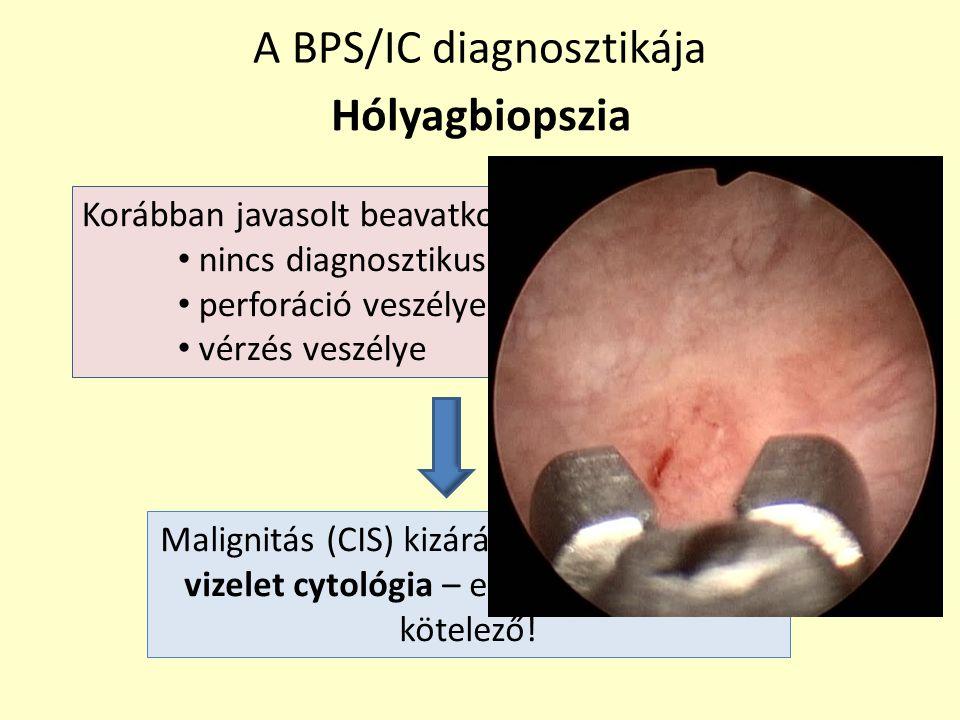 Hólyagbiopszia A BPS/IC diagnosztikája Korábban javasolt beavatkozás nincs diagnosztikus értéke perforáció veszélye vérzés veszélye Malignitás (CIS) k