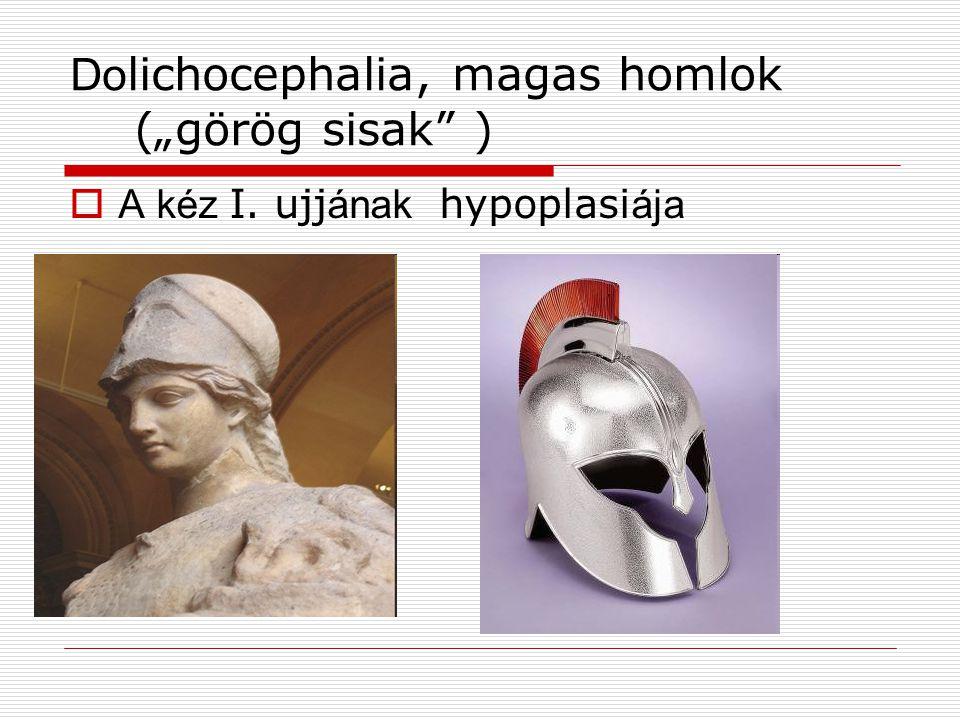"""Do lichocephalia, magas homlok (""""görög sisak"""" )  A kéz I. ujj ának hypoplasi ája"""