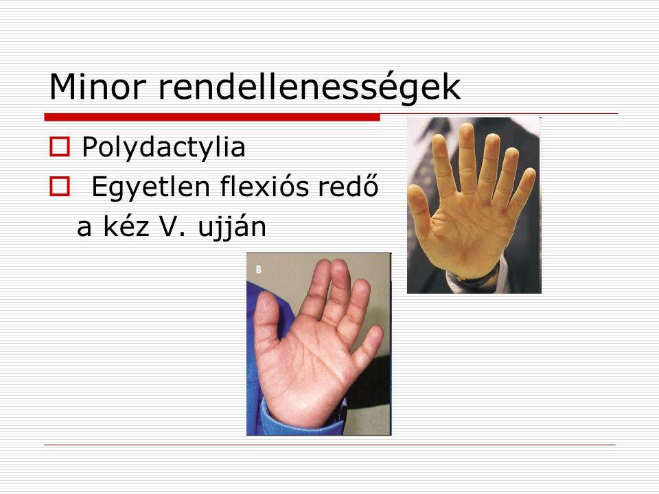 Minor rendellenességek  Polydactylia  Egyetlen flexiós redő a kéz V. ujján