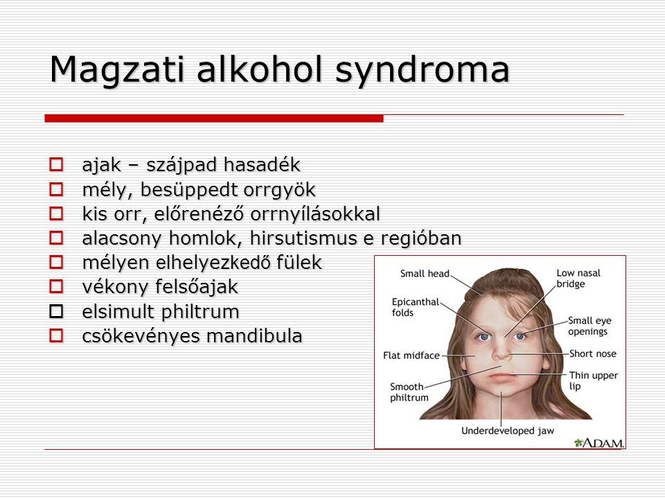 Magzati alkohol syndroma  ajak – szájpad hasadék  mély, besüppedt orrgyök  kis orr, előrenéző orrnyílásokkal  alacsony homlok, hirsutismus e regió