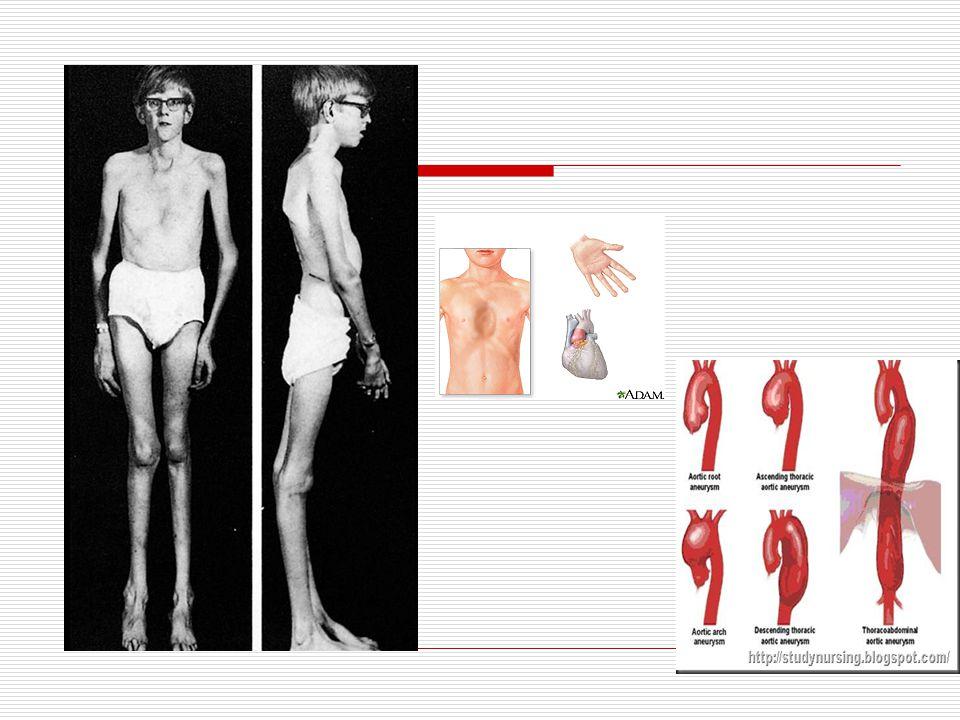 Egyéb szervrendszerek rendellenességei  Csontok, izületek  Izomrendszer  Bőr és bőrfüggelékek
