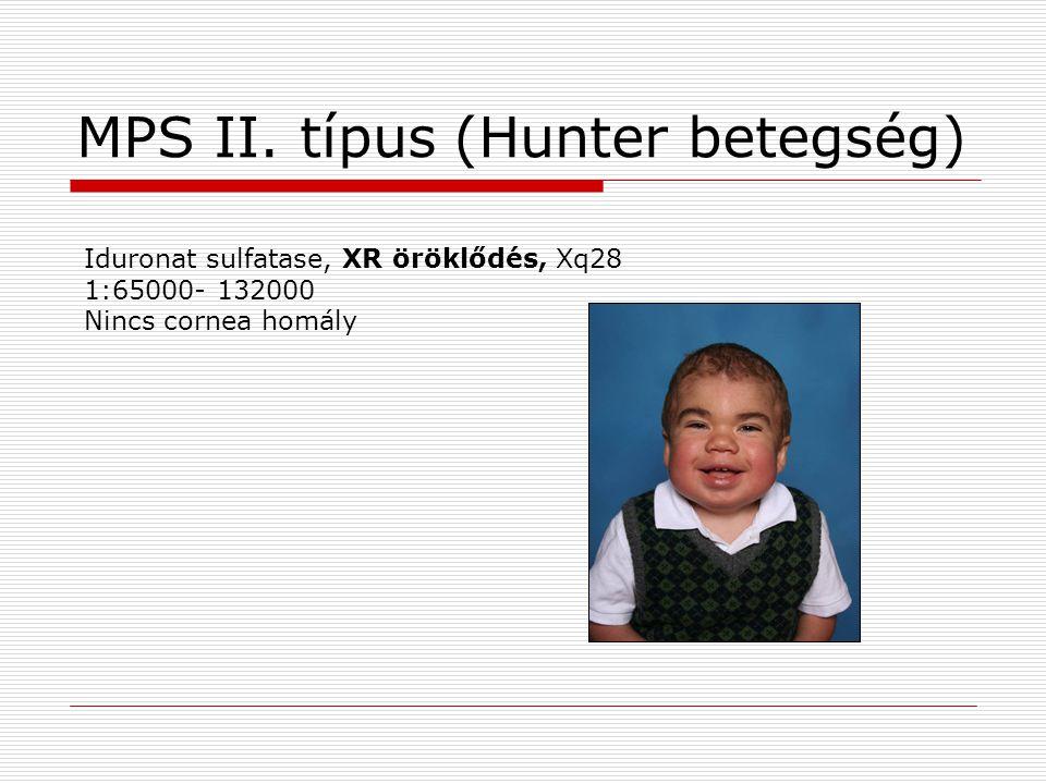 MPS II. típus (Hunter betegség) Iduronat sulfatase, XR öröklődés, Xq28 1:65000- 132000 Nincs cornea homály