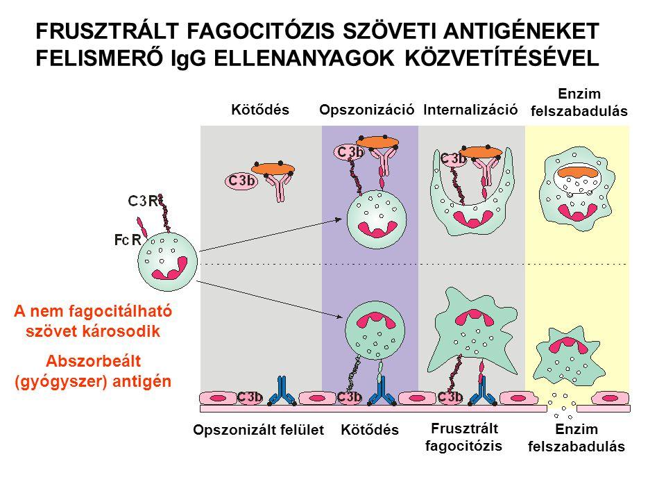 Néhány példa II-es típusú túlérzékenységi reakcióra Újszülöttek hemolitikus anémiája Transzfúziós reakció Hiperakut allograft kilökődés Gyógyszer által kiváltott Hemolitikus anémia Trombocitopénia Agranulocitózis Penicillin alapú antibiotikumok Anti-aritmiás quinidin Goodpasture szindróma (vese, bazális membrán, IV kollagén) Pemphigus vulgaris (nyálkahártya hólyagok)  dezmoszómális antigének ellen, epidermális és mukozális kapcsolatok roncsolása, akantolízis (sejtekre esés) Myasthaenia gravis (acetil-kolin receptor elleni gátlóantitest) Basedow-kór (TSH-receptor elleni serkentő antitest)