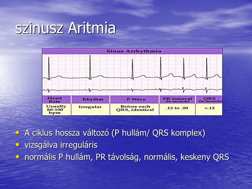 szinusz Aritmia A ciklus hossza változó (P hullám/ QRS komplex) A ciklus hossza változó (P hullám/ QRS komplex) vizsgálva irreguláris vizsgálva irregu