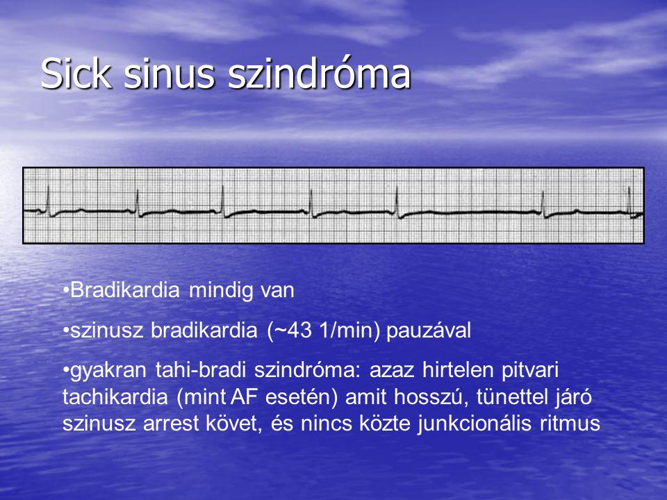 Sick sinus szindróma Bradikardia mindig van szinusz bradikardia (~43 1/min) pauzával gyakran tahi-bradi szindróma: azaz hirtelen pitvari tachikardia (